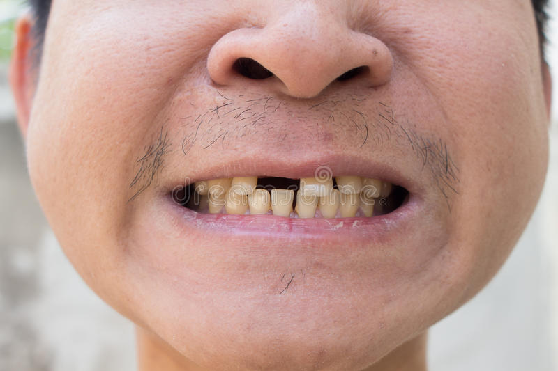 Broken tooth of a man.  stock photography