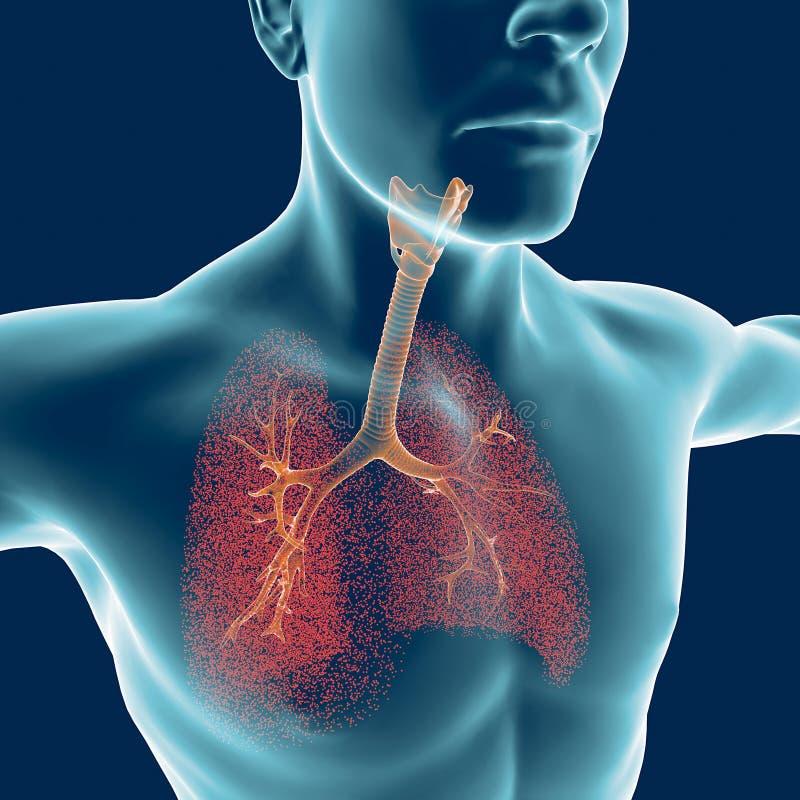 Bronchiën, het menselijke lichaam, ontsteking stock illustratie