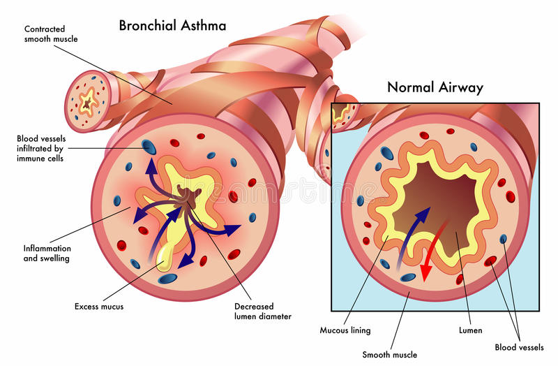 Bronchial asthma. Medical illustration of the effects of bronchial asthma vector illustration