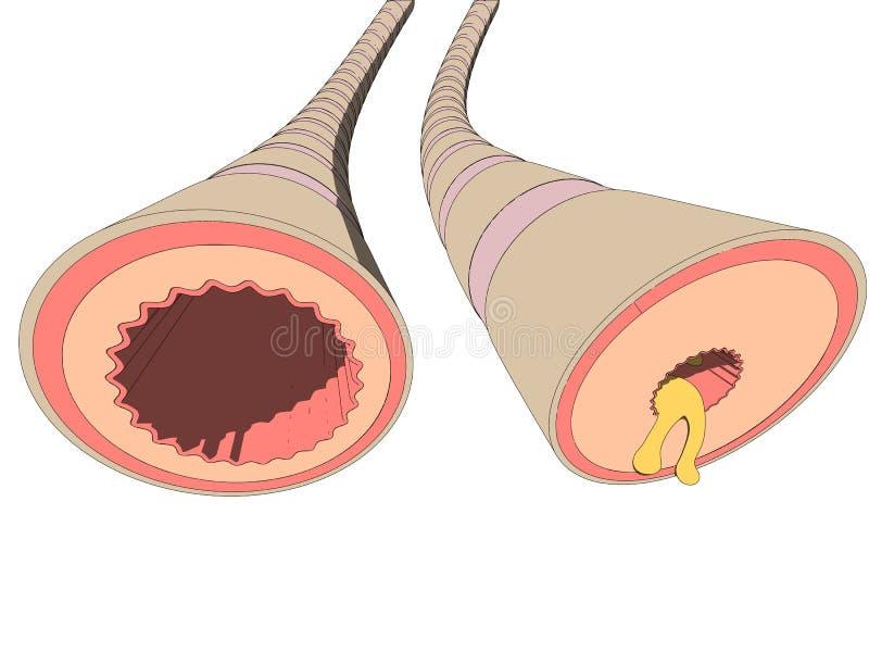 Bronchiales da asma ilustração royalty free