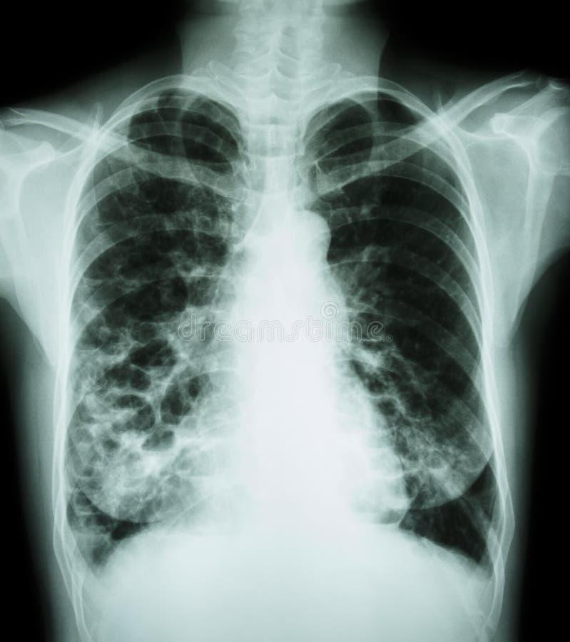 Bronchiectasis stockfotos