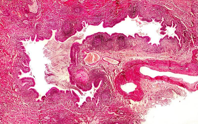 Bronchiectasis, helles Fotomikrobild lizenzfreies stockfoto