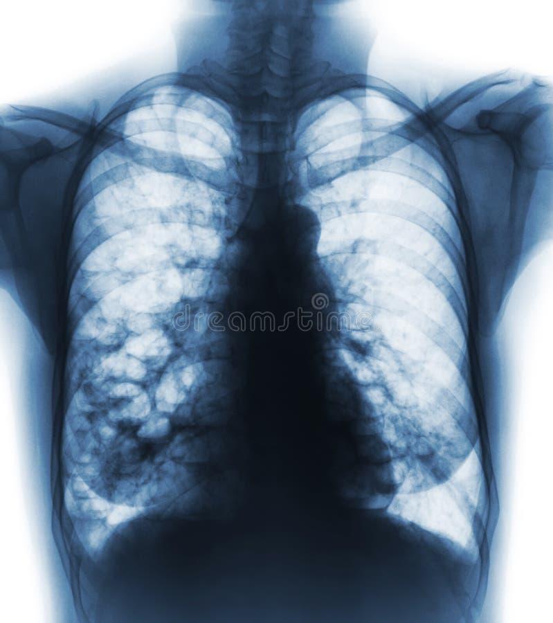 Bronchiectasis Lungenbleb und -zyste der Röntgenstrahlkastenshow mehrfacher wegen der chronischen Infektion Front View lizenzfreie stockfotografie