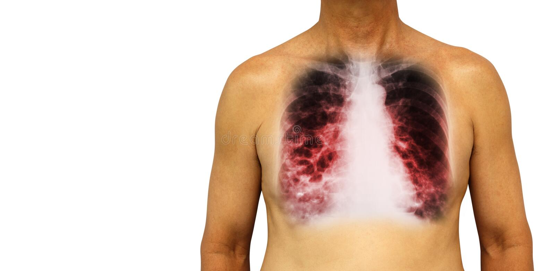Bronchiectasis Menschlicher Kasten mit mehrfachem Bleb Lunge der Röntgenstrahlkastenshow und Zyste wegen der chronischen Infektio lizenzfreie stockbilder