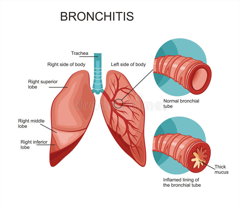 Bronchitis stock vector illustration of bronchi breath 72235911 illustration of bronchi breath 72235911 ccuart Images