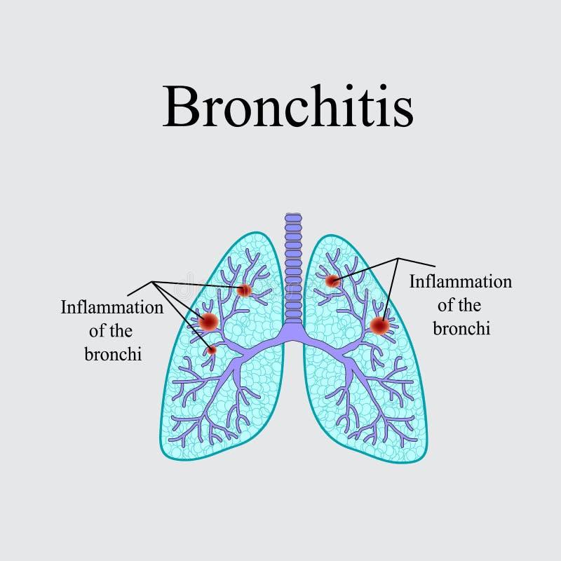 bronchitis Die anatomische Struktur der menschlichen Lunge Vektorillustration auf einem grauen Hintergrund lizenzfreie abbildung