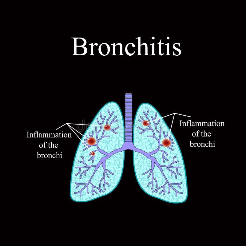 bronchitis Die anatomische Struktur der menschlichen Lunge Vektorillustration auf einem schwarzen Hintergrund lizenzfreie abbildung