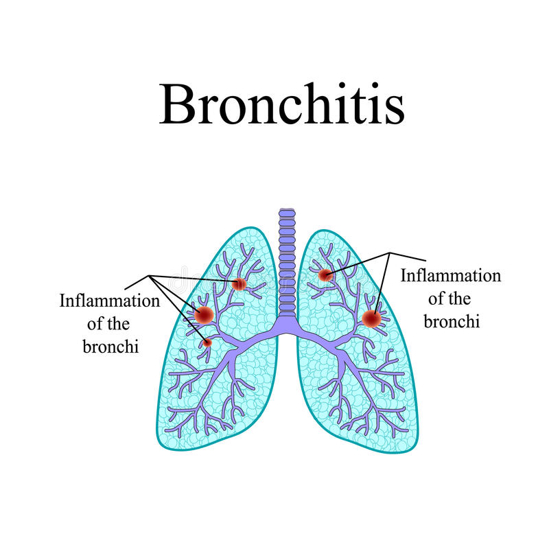 bronchitis Die anatomische Struktur des Menschen stock abbildung