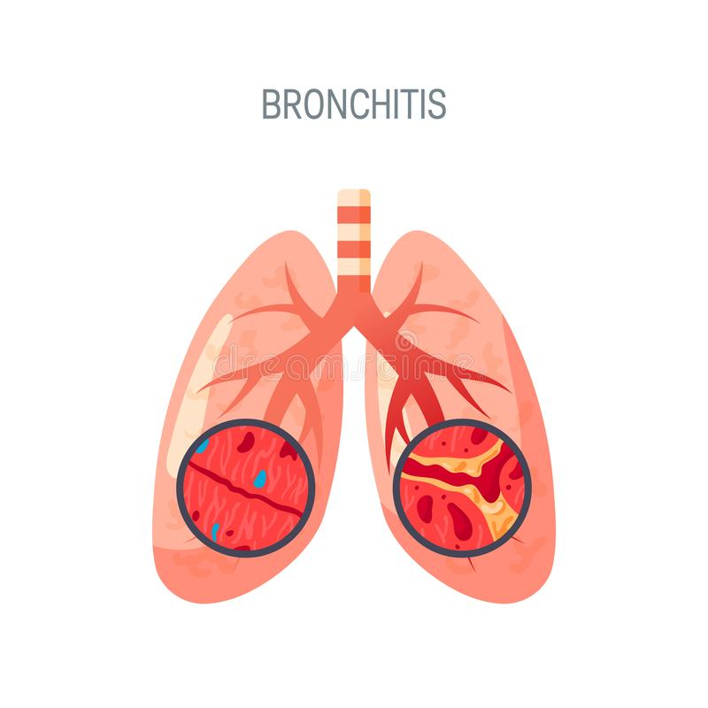 Bronchitiskrankheitsüberträgerikone in der flachen Art stock abbildung
