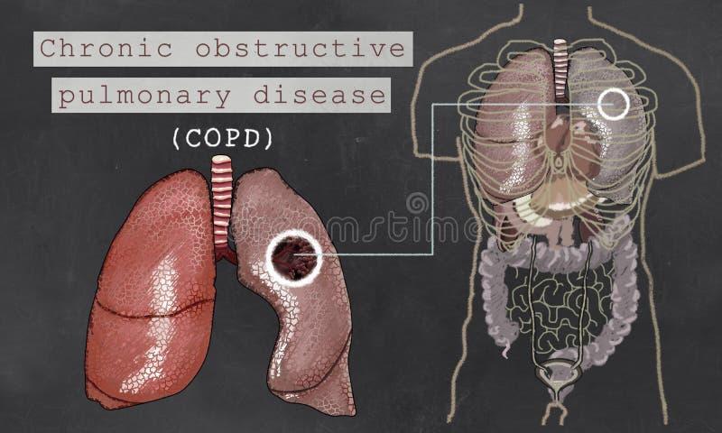 Bronchopneumopathie chronique obstructive avec des poumons illustration stock