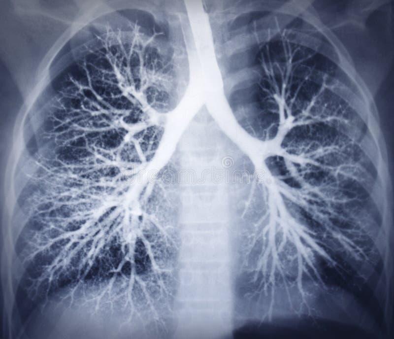 Bronchoscopybeeld. Borströntgenstraal. Gezonde longen stock foto's