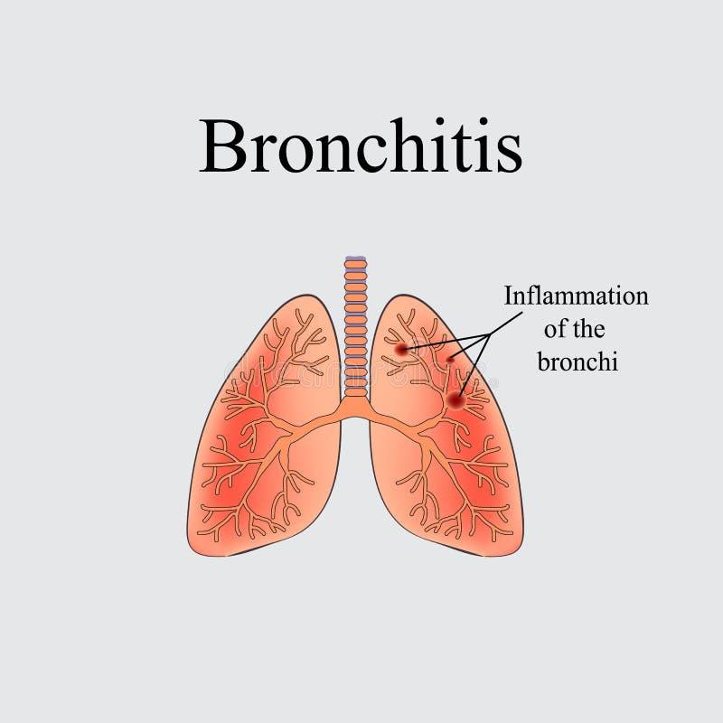 bronquitis La estructura anatómica del pulmón humano Ejemplo del vector en un fondo gris libre illustration