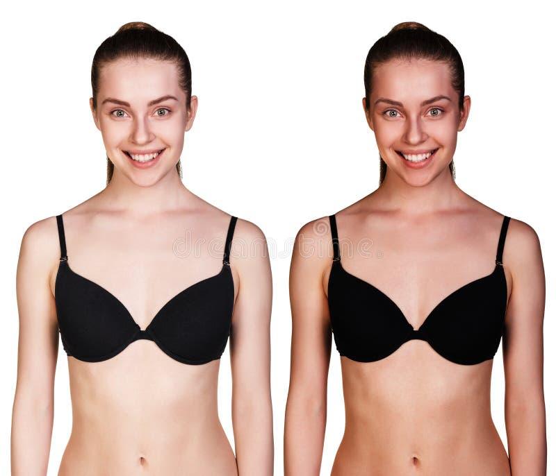 Bronzear-se antes e depois fotografia de stock