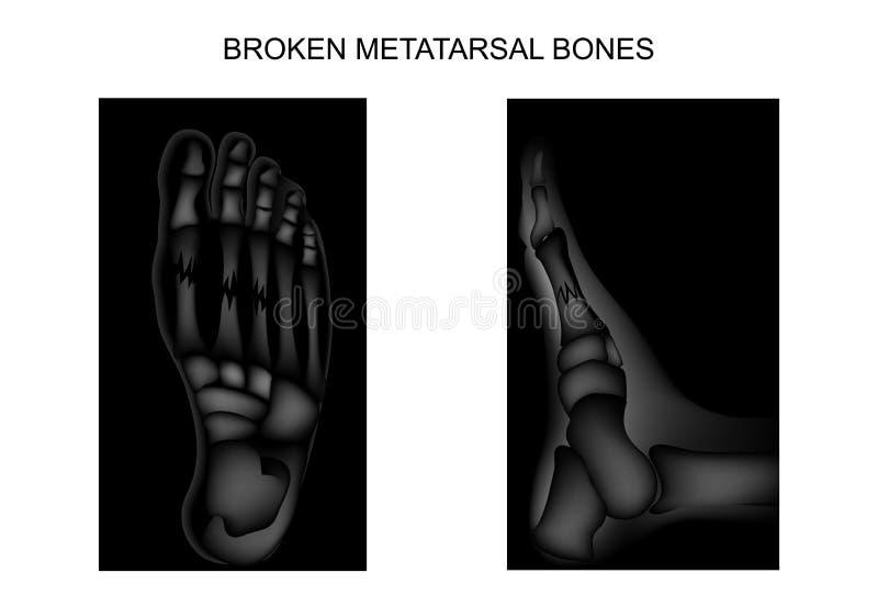 Brott av metatarsalbenen av foten stock illustrationer