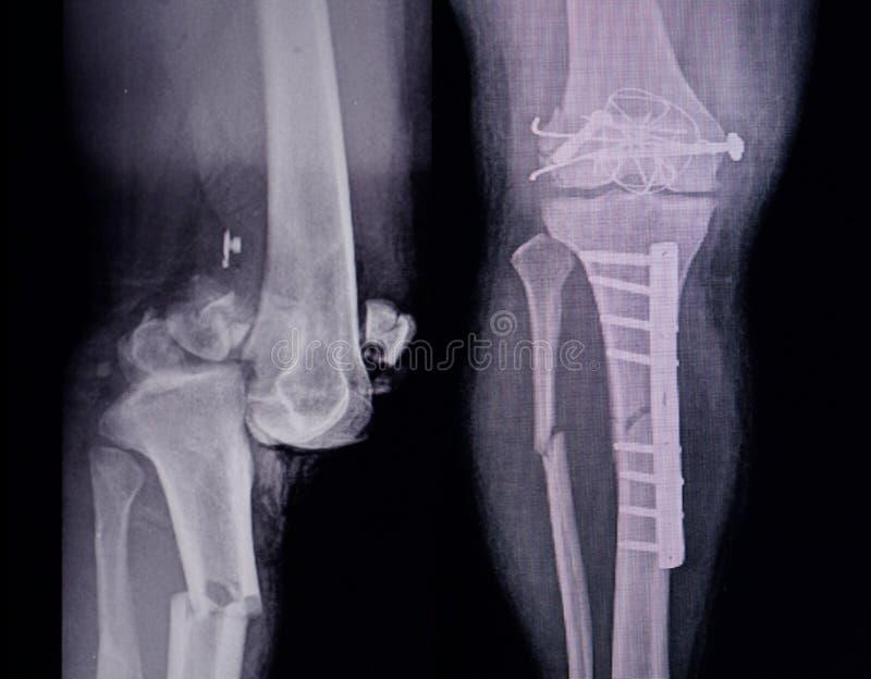 Brott för visning för sikt för röntgenstråleben 2 med inre fixering för stolpeoperation för fotografering för bildbyråer
