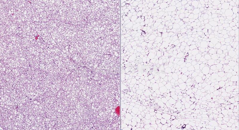Brown (laissé) et graisse (droite) blanche images stock