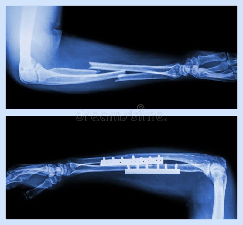Bruch Ulnar Und Radius (Unterarmknochen) Stockfoto - Bild von metall ...