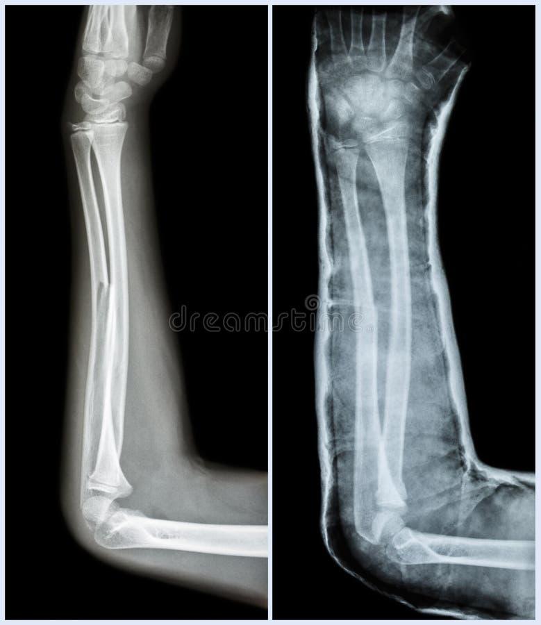 Bruchwelle Des Ulnaren Knochens (Unterarmknochen) Stockfoto - Bild ...
