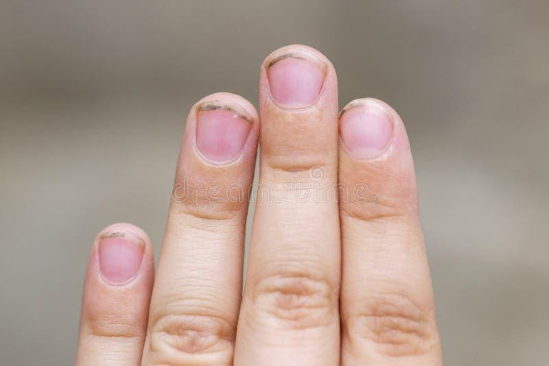 Brudni d?udzy gwo?dzie zarazki robi? choroby Brud pod gwoździami dziecko Higien dzieci ręki obraz stock