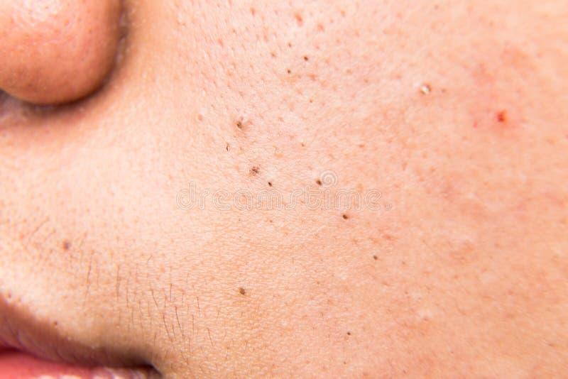 Brufoli, acne, zit e comedoni brutti sulla guancia di un adolescente fotografia stock libera da diritti