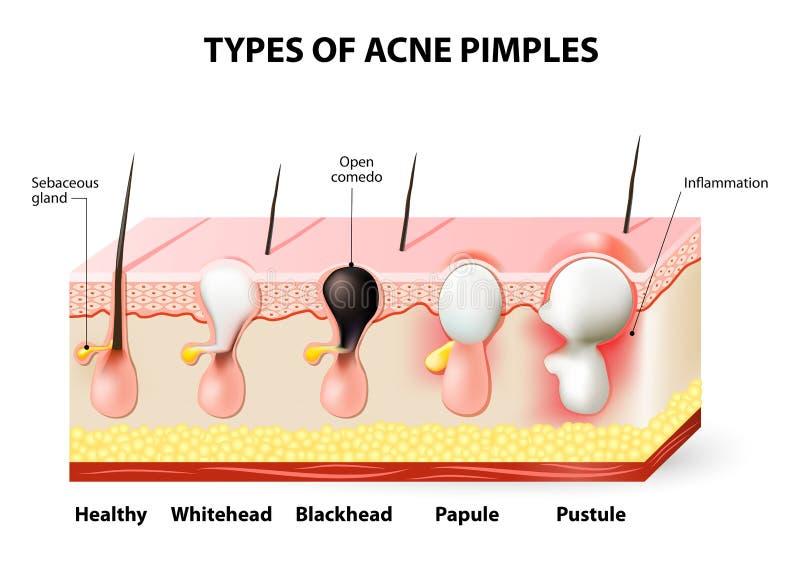 Brufoli dell'acne royalty illustrazione gratis