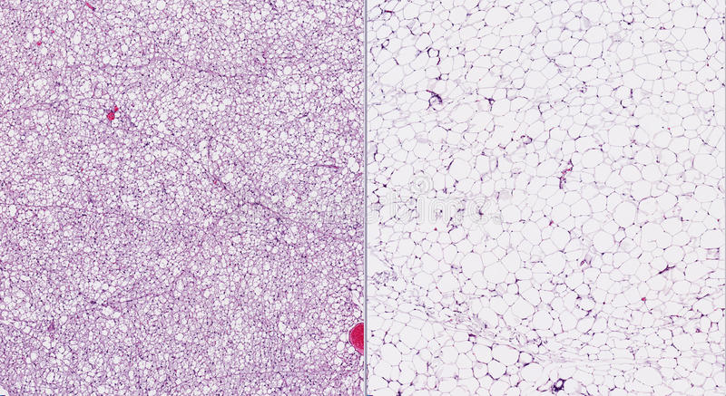 Bruin (weggegaan) en wit (juist) vet stock afbeeldingen