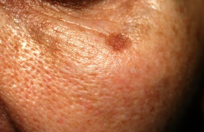 Bruine vlek op het gezicht Pigmentatie op de huid stock foto's
