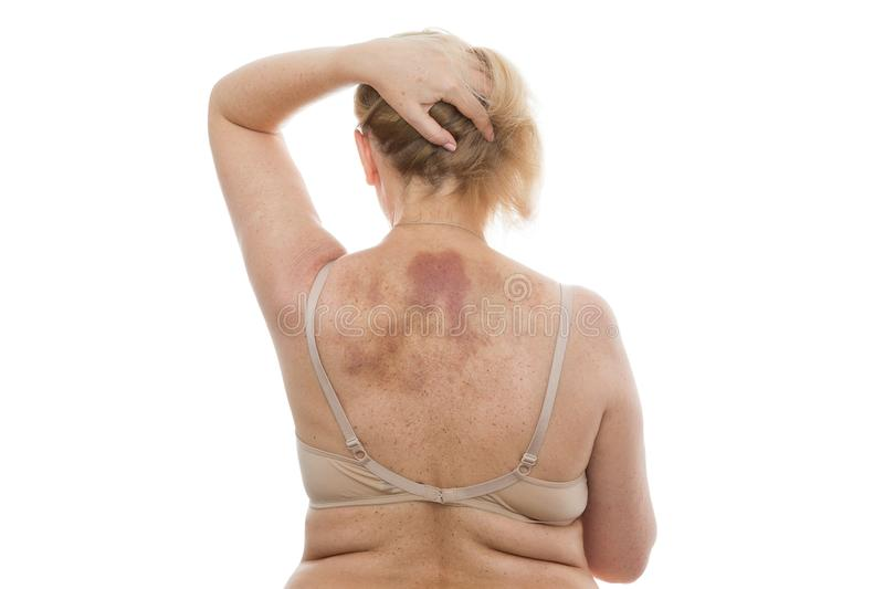 A bruise on the back, a woman with extensive hematoma after a massage royalty free stock photo