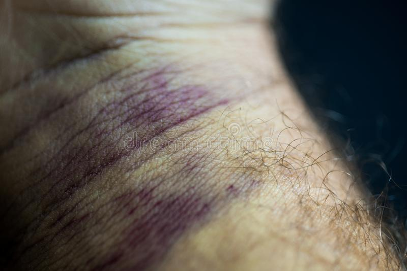 Bruise on man arm. Injection bruises. High contrast macro photography. Purple veins on the wrist stock photo