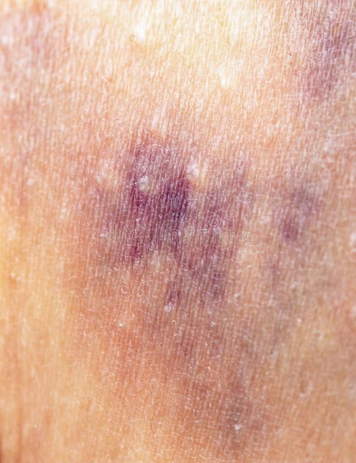 Bruise on the skin royalty free stock image
