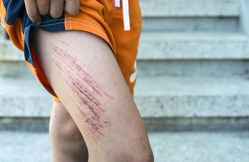 Arm Bruise Stock Images - Download 670 Royalty Free Photos