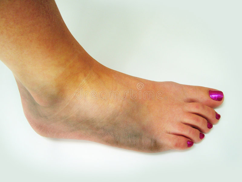 Bruised ankle. A girl's Bruised ankle and foot stock photos