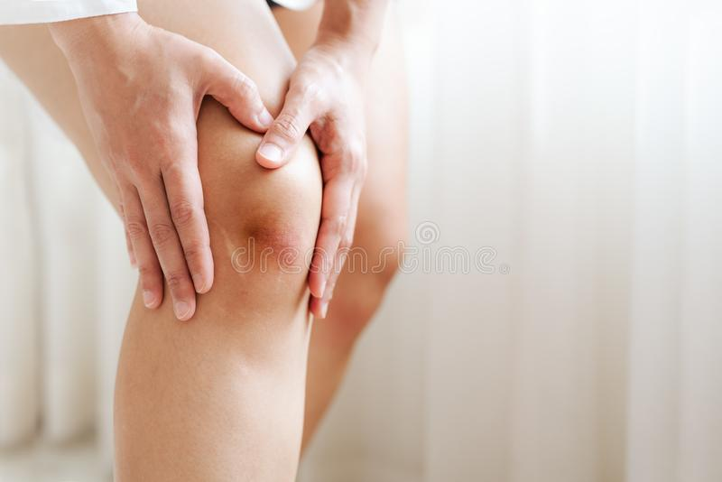 Bruised knee of asia woman, selective focus royalty free stock photography