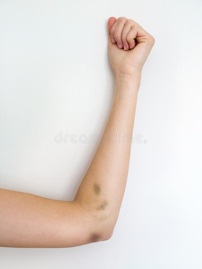 Bruised womans arm on white background, domestic violence stock image