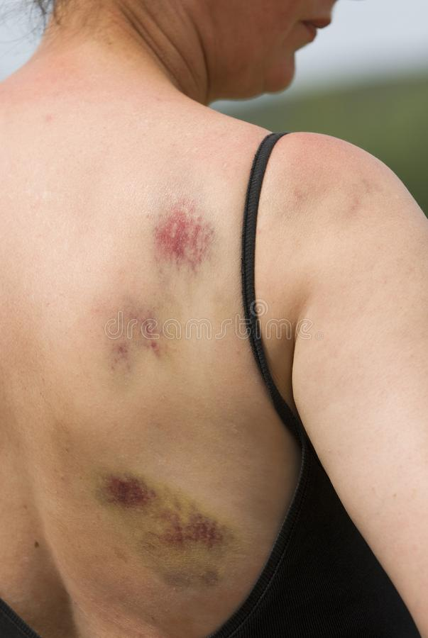 Bruising On Woman Royalty Free Stock Photography