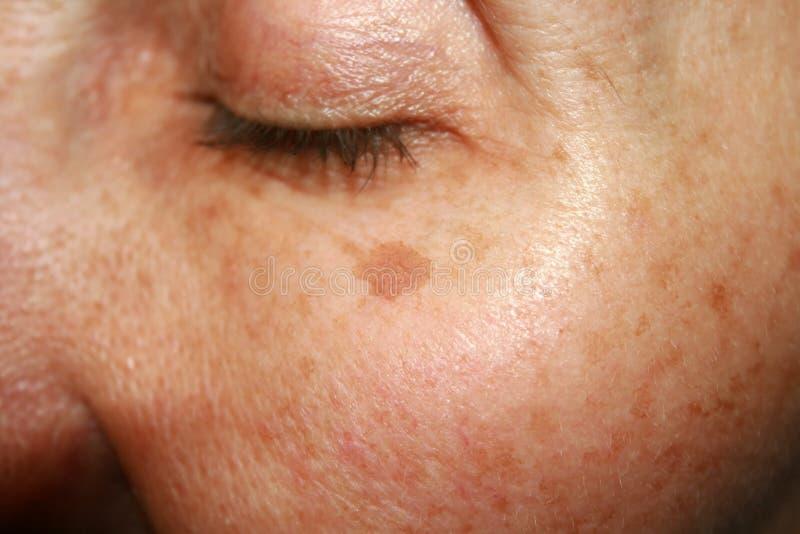 Bruna fläckar under ögat Pigmentering på framsidan royaltyfria foton