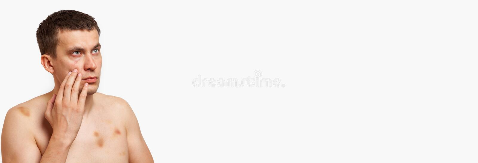 Brunette man with bruises on his body holds hand to his head in pain after a fight on a white banner isolated background royalty free stock image