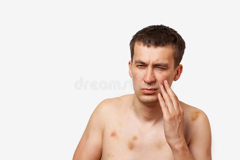 Brunette man with bruises on his body holds hand to his head in pain after a fight on a white isolated background royalty free stock images