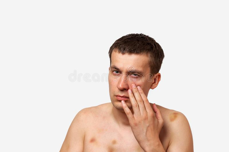 Brunette man with bruises on his body holds hand to his head in pain after a fight on a white isolated background stock photos