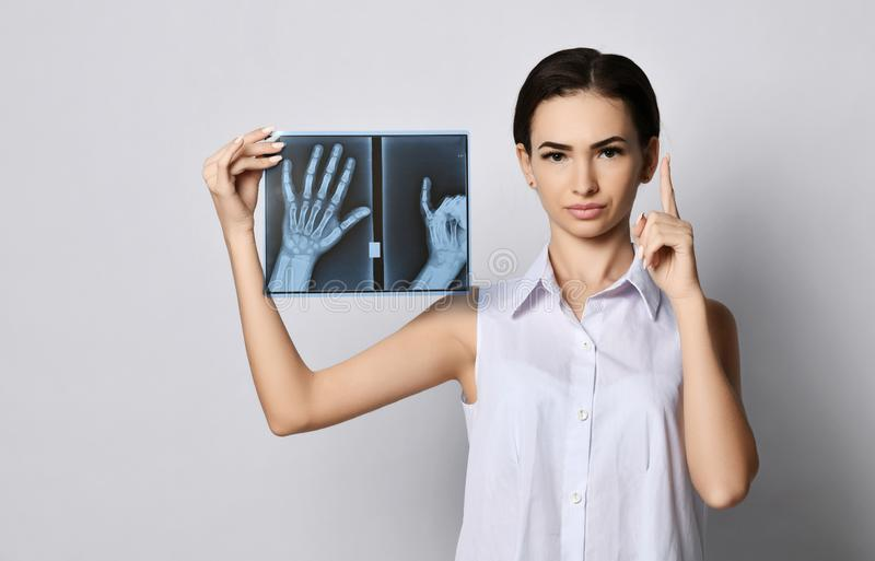 Young brunette woman with a straight face doctor or clinic patient demonstrates hands X-ray examination and lifted her finger up stock photo