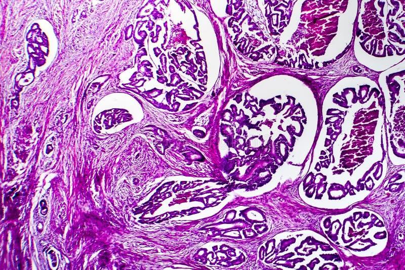 Brunn-åtskild inälvs- adenocarcinoma, ljus micrograph arkivbild