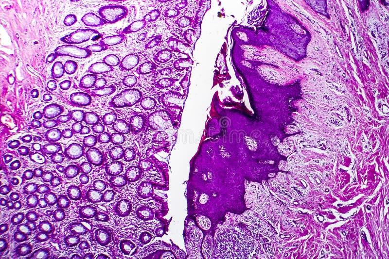 Brunn-åtskild inälvs- adenocarcinoma, ljus micrograph royaltyfri foto