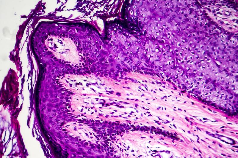Brunn-åtskild inälvs- adenocarcinoma, ljus micrograph arkivbilder