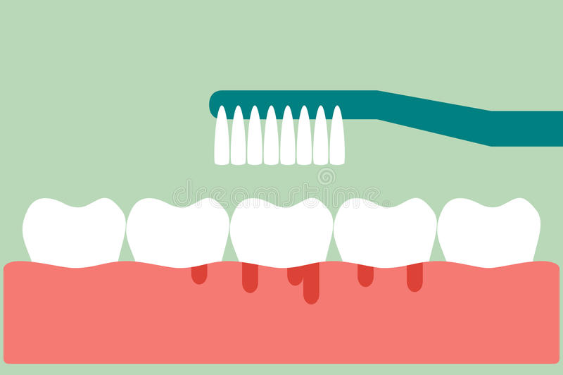 Brushing teeth with bleeding on gum and tooth concept gingivitis or scurvy. Dental cartoon vector, brushing teeth with bleeding on gum and tooth concept vector illustration