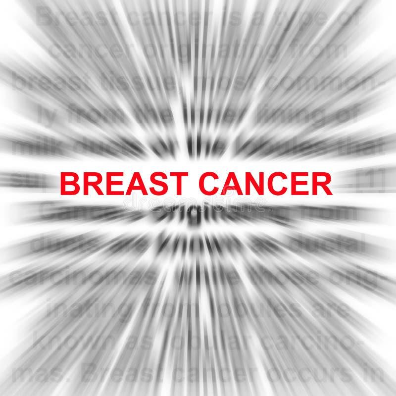 Brustkrebs stock abbildung