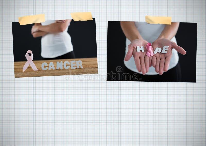 Brustkrebs-Bewusstseins-Foto-Collage mit der Frau, die Hoffnungsbuchstaben hält lizenzfreie stockfotografie