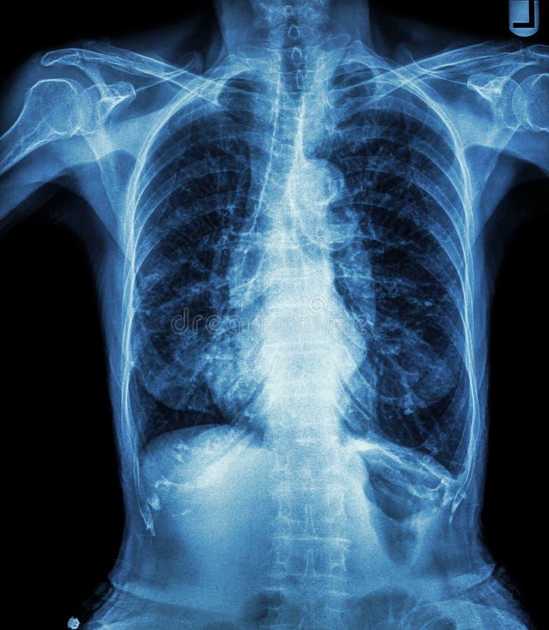 Brustradiographie des alten Patienten (Kalkbildung an der Rippe, an der Trachea, am Bronchus) lizenzfreie stockbilder