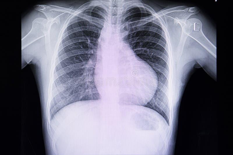 Brustradiographiefilm eines Patienten mit rechter Kammerhypertrophie stockfotos
