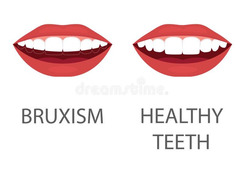 bruxism mala av tänder tandanordning Braces på en vit bakgrund tandläkekonsthälsoproblem vektor illustrationer