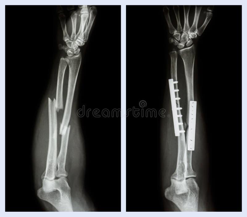 Bryta båda benet av underarmen Det fungerades och inre fast med plattan och skruven arkivbilder